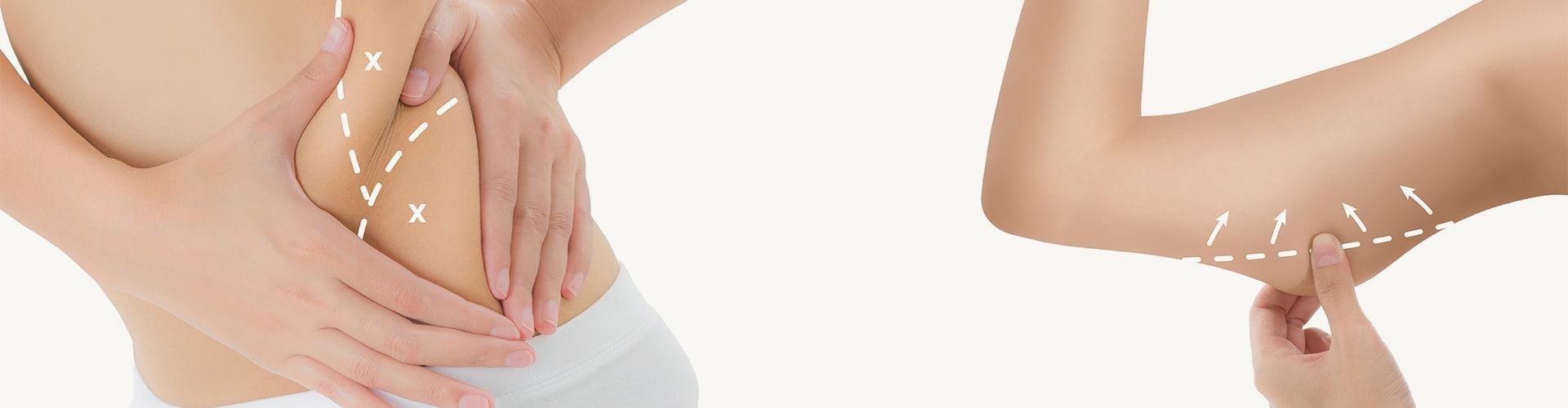 liposuction operasyonu
